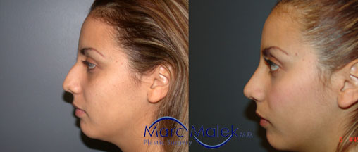 Rhinoplasty Phoenix Before & After