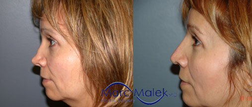 Rhinoplasty Scottsdale Before & After